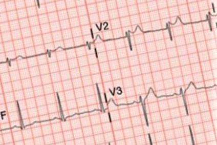 EKG Hausarzt Wichtrach